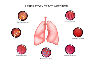 lungs and respiratory tract infections