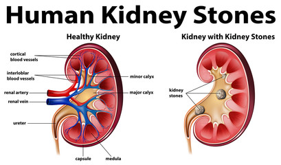 Human anatomy diagram with kidney stones