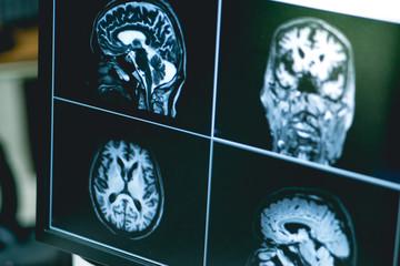 Dementia on film MRI
