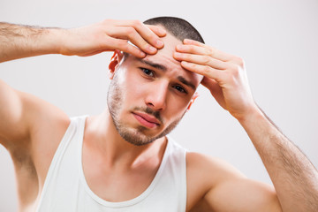 Young man is squeezing pimple on his forehead.