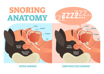 Snoring anatomy medical vector diagram with air passage.