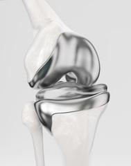 Knee with modern knee prosthesis - 3D Rendering