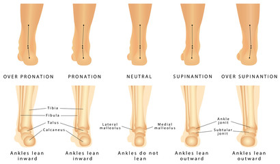Foot deformation
