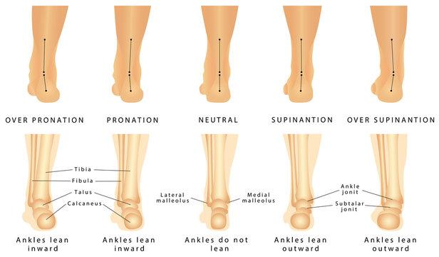 Foot deformation