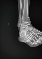 Right ankle x-ray. Downward scan