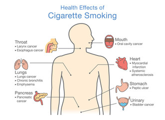 Diagram about health effect of cigarette smoking. Illustration about risk of smokers.