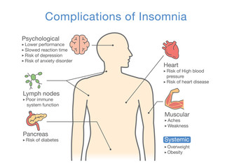 Diagram of Complications of Insomnia. llustration about effects of health problem.