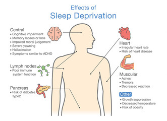 Diagram of Effects of Sleep deprivation. Illustration about disease diagnosis.