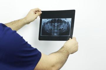 Doctor looking at a dental radiography