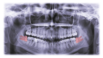 x-ray of teeth, molar tooth improperly growing