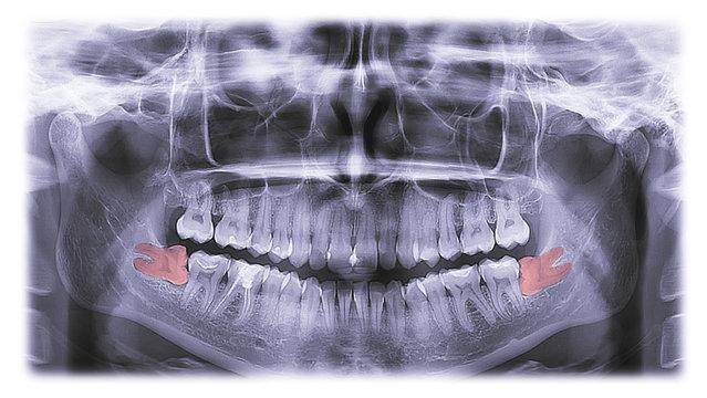 x-ray of teeth, molar tooth improperly growing