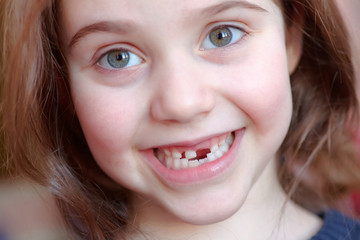 The adorable girl smiles with the fall of the first baby teeth.
