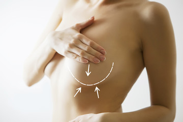breast cancer and operation concept- body with marks