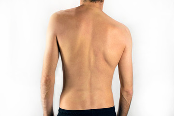 scoliosis of the back of a man selective focus, white background