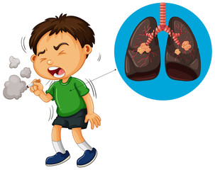 Boy smoking cigarette and unhealthy lungs diagram