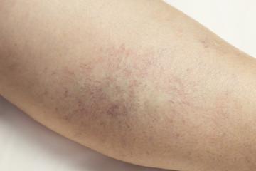 Varicose veins on the leg