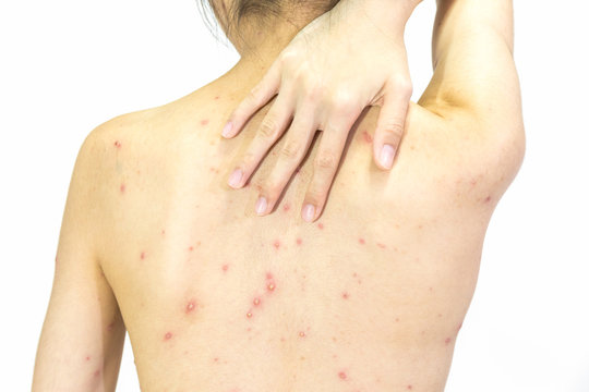 Closeup of girl back of Varicella virus or Chicken Pox on white background.