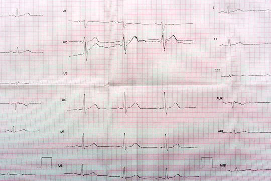 Emergency cardiology and intensive care. ECG with acute period of large-focal widespread anterior myocardial infarction .