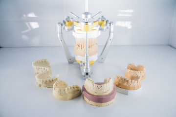 a set of dental casts