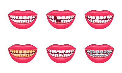 Realistic Detailed 3d Dental Problems Set. Vector