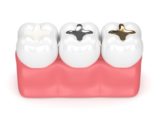 3d render of teeth with different types of dental filling