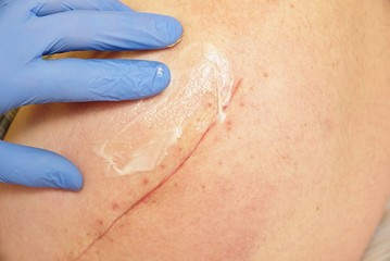 The hand of the nurse performs the hip massage. Patient with a long scar