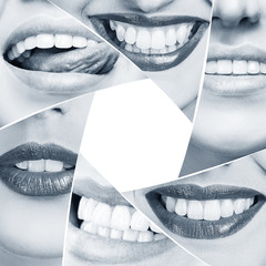 Collage of healthy smile in diaphragm shape.