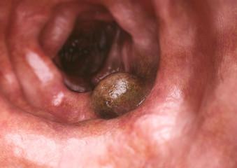Colon cancer closeup - 3D Rendering