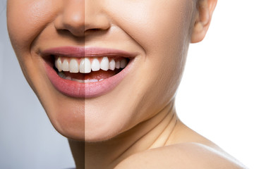 Female teeth and skin befor and after care, therapy and whitening. Laughing woman mouth with great teeth over white background. Healthy beautiful female smile.