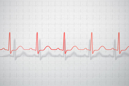 Dimensional ECG line with shadow on the graph paper