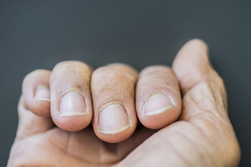 Fingers with dry fingernails On a gray background