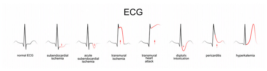 interpretation of ECG