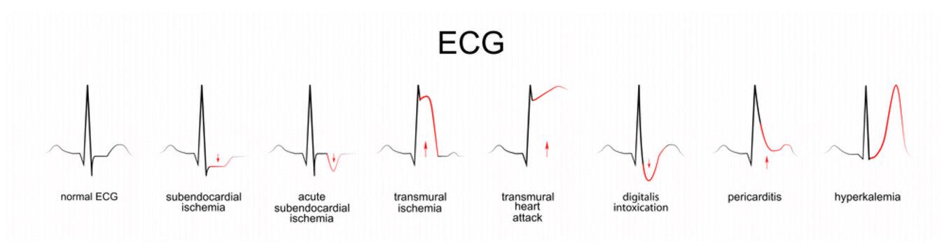 interpretation of ECG