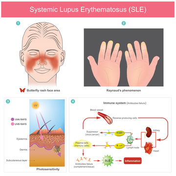 Systemic Lupus Erythematosus (SLE). The patients skin inflammation from the light. Illustration.