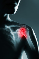 Human shoulder joint in x-ray, on gray background. The hand is highlighted by red colour.