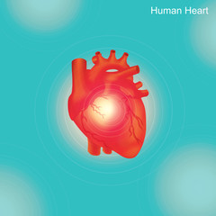 Human Heart. Angioplasty is an endovascular procedure to widen narrowed or obstructed arteries or veins, typically to treat arterial atherosclerosis