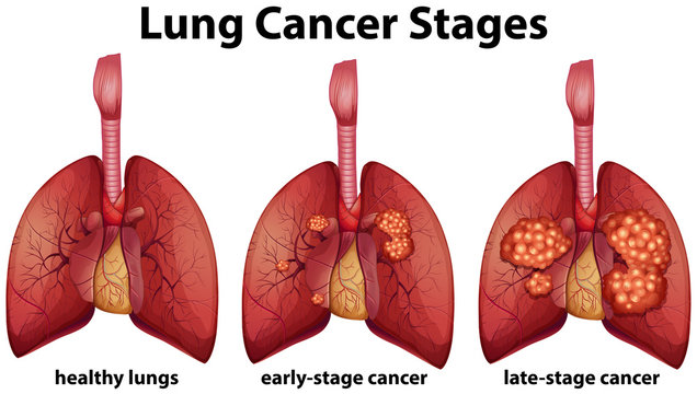 Diagram showing lung cancer stages
