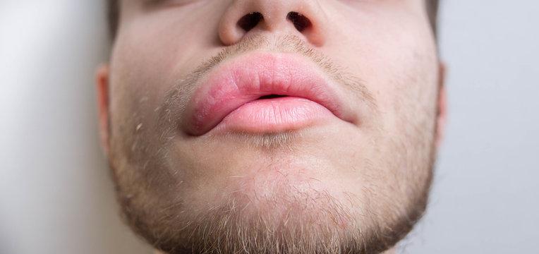 allergy on the lip. Angioedema.
