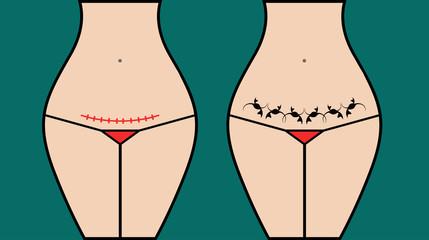 Masking cesarea scar section tattoo