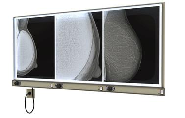 Mammografia, Ecografia, Senologia, Illustrazione 3d