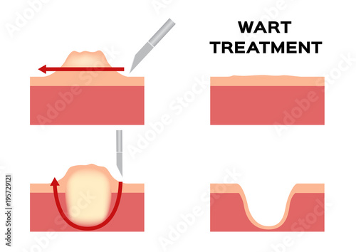Wart Treatment Remove It From Skin By Surgery Vector Callus Stock