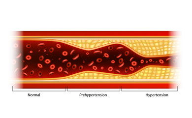 Hypertension and Prehypertension. Plaque in blood vessels