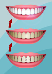 Set of Smiles, Healthy Teeth, Teeth Whitening, Caries Treatment