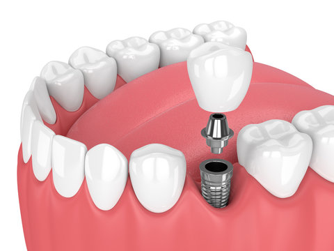 3d render of jaw with teeth and dental premolar implant
