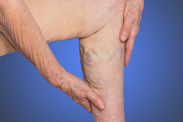 The varicose veins on a legs of old woman on blue