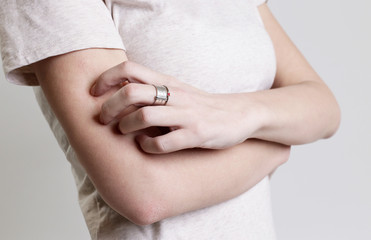 Close up view of woman scratching her arm. Health care and medical concept.