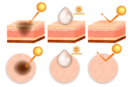UV Protection. UV reflection skin before and after protection. Protect and Support healthy skin in the sun
