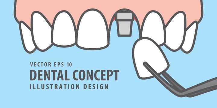 Upper Banner Single implant tooth illustration vector on blue background. Dental concept.