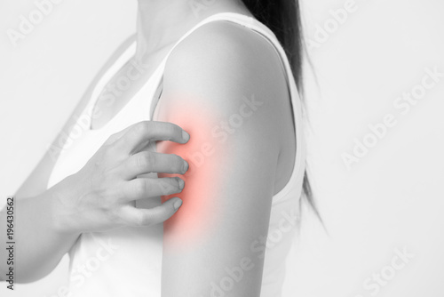 Close up woman arm scratch the itch by hand at home. Healthcare and ...