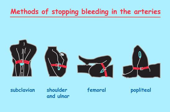 methods of stopping bleeding in the arteries black body. vector info graphic